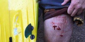 Hai-Plage vor Australien: Wieder Surfer attackiert
